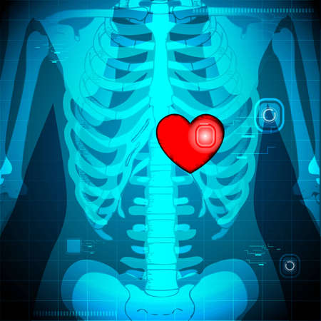 surgery concept: illustration of xray of human showing glowing heart behind rib Stock Photo