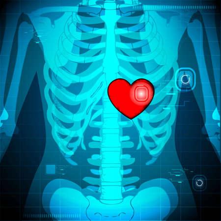 x rays negative: illustration of xray of human showing glowing heart behind rib Stock Photo