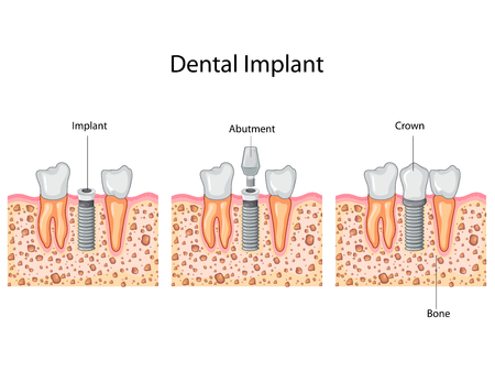 Education Chart of Dental Implant process Diagram