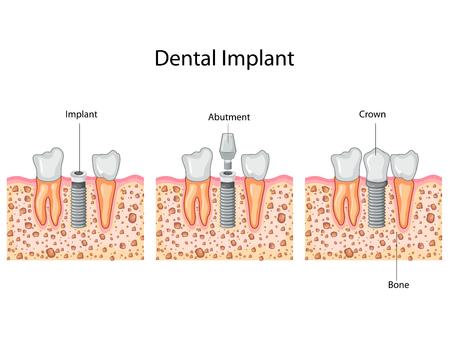 Education Chart of Dental Implant process Diagram