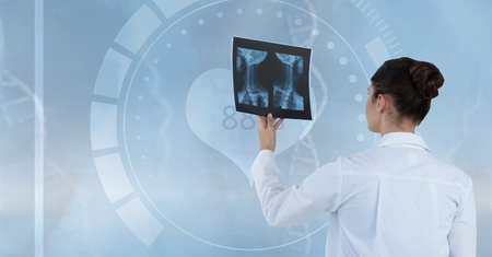 Digital composite of Doctor (women) looking a x-ray photography Stock Photo