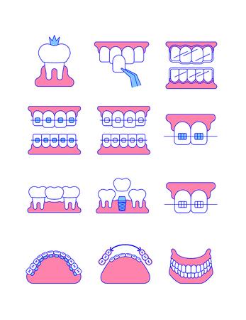 Zahnklinik Chirurgie Dienstleistungen dünne Linie Vektorsymbole. Zahnimplantat, Brücke, Veneer, Kronenkonzepte. Kieferorthopädische Behandlungen wie Metall-, Keramik-, Lingual-, Kunststoff-Zahnspangen. Abnehmbares Gebisssymbol
