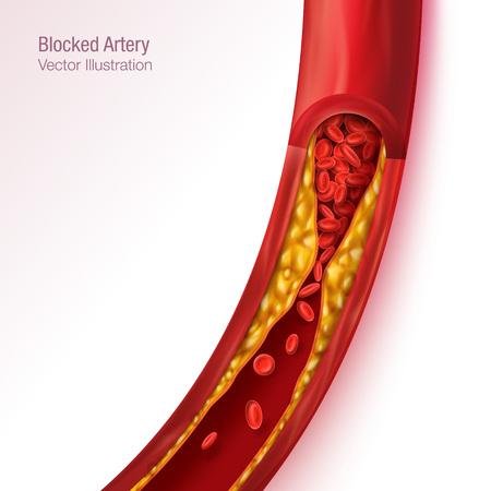Vaso sanguigno bloccato - arteria con bulidup di colesterolo realistico illustrazione vettoriale sfondo isolato