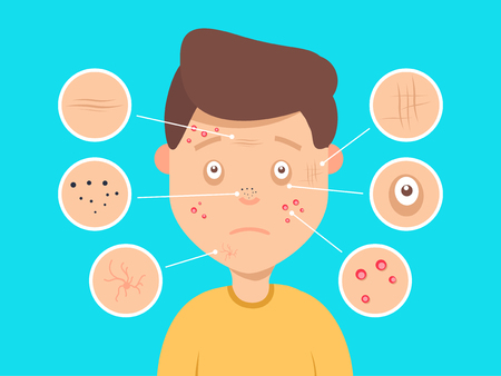 Male facial skin problems vector illustration. Acne and dark spots, wrinkles and circles under the eyes for cosmetics websites Medical healthcare illustration concept
