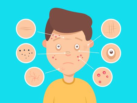 Male facial problemas de la piel ilustración vectorial. Acné y manchas oscuras, arrugas y círculos bajo los ojos para los sitios web de cosméticos