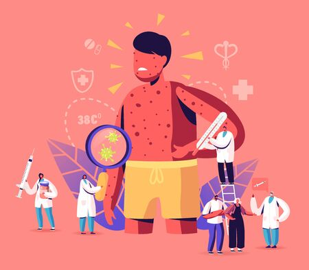 Chicken Pox Varicella Symptoms Concept. Tiny Doctors Characters with Stuff near Huge Boy with Red Pimples on Body. People Vaccination, Medical Prevention and Immunization. Cartoon Vector Illustration