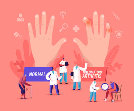 Rheumatoid Arthritis Concept. Tiny Doctor Characters Examine Huge Hand with Joints Disease and Pathology, Arms Illness