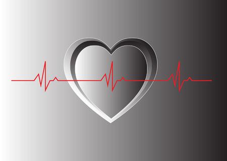sinus: Normal Sinus Heart beat