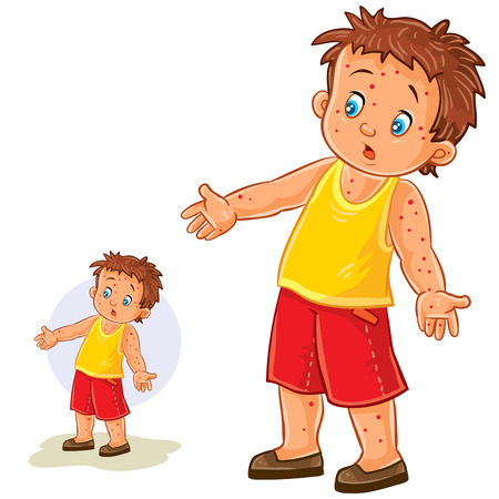 communicable: Vector illustration of a little boy with a rash on his hands and legs, chickenpox, smallpox, allergies.