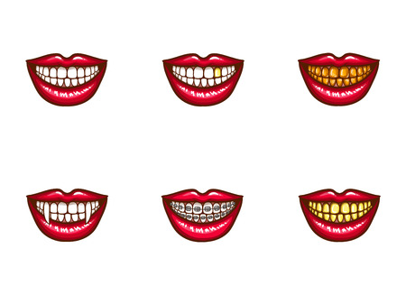 Set of vector red female lips with white healthy teeth and perfect smile, with vampire fangs, with metal dental crowns and implants, with braces. Pop art style illustration. Clipart for dental design Vectores