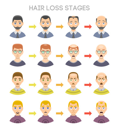 scalp: Information chart of hair loss stages and types of baldness illustrated on a male head. Medical health problem baldness stages. Growth scalp hairstyle baldness stages grow healthcare vector set. Illustration