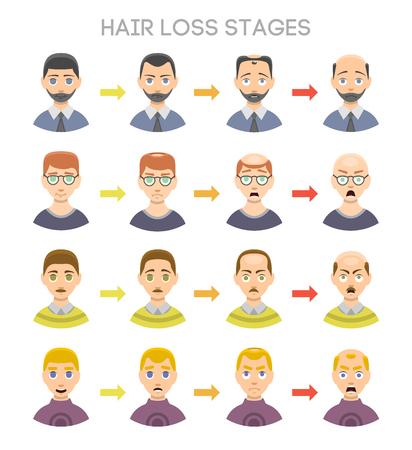 calvicie: Information chart of hair loss stages and types of baldness illustrated on a male head. Medical health problem baldness stages. Growth scalp hairstyle baldness stages grow healthcare vector set. Vectores