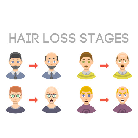Information chart of hair loss stages types of baldness illustrated on male head vector. Vetores