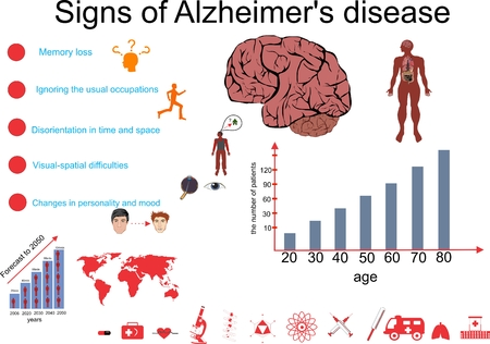 amnesia: Alzheimers disease info graphic illustration