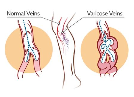 Venas varicosas. Ilustración de vector de trombosis de vasos y sistema vascular de la pierna saludable