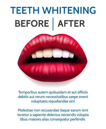 Teeth whitening poster. Female open mouth with yellow teeth and perfection clean healthy white teeth dental procedure poster template, vector illustration