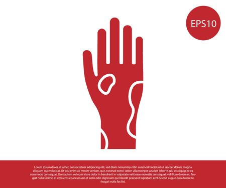 Red Hand with psoriasis or eczema icon isolated on white background. Concept of human skin response to allergen or chronic body problem. Vector Illustration