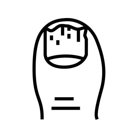 onychomycosis nail disease line icon vector. onychomycosis nail disease sign. isolated contour symbol black illustration
