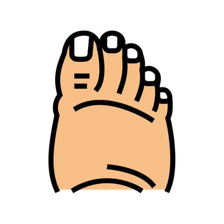 fatty foot edema color icon vector. fatty foot edema sign. isolated symbol illustration