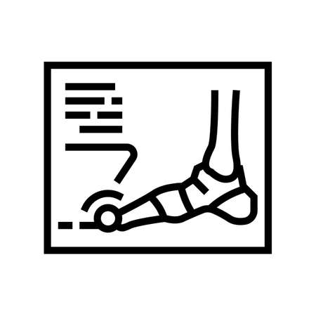 x-ray radiograph of foot gout diesase line icon vector. x-ray radiograph of foot gout diesase sign. isolated contour symbol black illustration