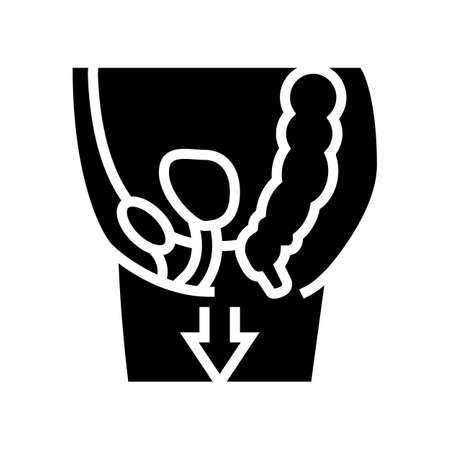 organ prolapse disease line icon vector. organ prolapse disease sign. isolated contour symbol black illustration