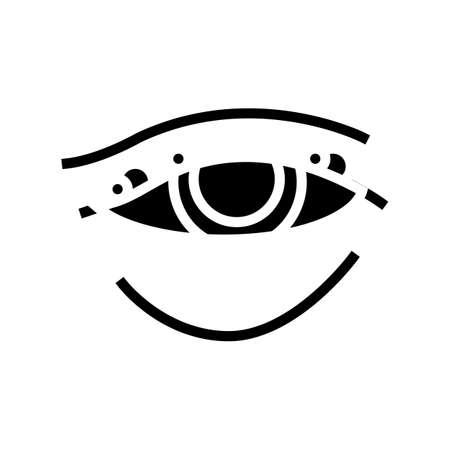 blepharitis disease, redness of eyeball glyph icon vector. blepharitis disease, redness of eyeball sign. isolated contour symbol black illustration
