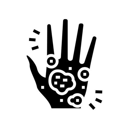 hand eczema glyph icon vector. hand eczema sign. isolated contour symbol black illustration 向量圖像