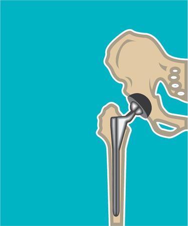 Hüftgelenkersatz Vektor-Illustration Clip-Art-Bild Standard-Bild - 69748511