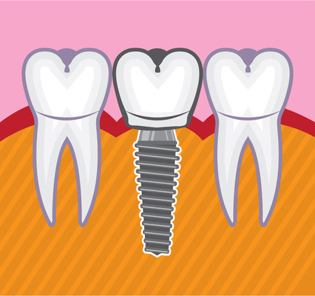 Tooth implant dental illustration clip-art image Фото со стока