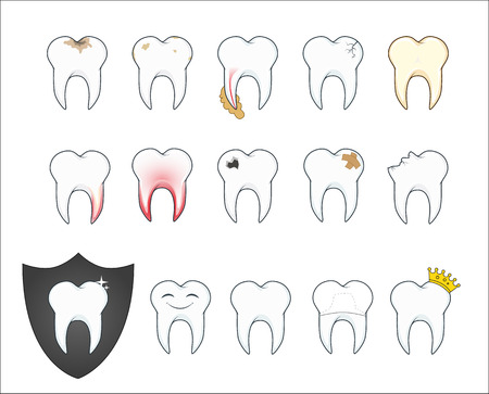 Bad tooth with plaque and cavity. Vector illustration. Illustration