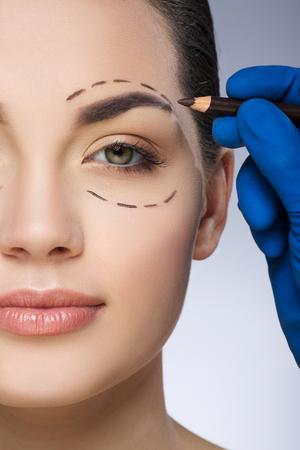 Surgeon drawing dashed lines around girls eye