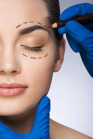 Surgeon drawing dashed lines around girls closed eye Banque d'images