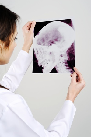 An image of woman with x-ray Stock Photo - 8761551
