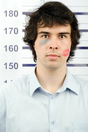 An image of a man with a kiss and a bruise on his face photo
