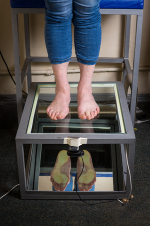 Step Digital Foot Scan, Orthotics Foot Scan for Custom Made Shoe Insoles, Posture and equilibrium analysis. Doctor, patient. Posture and equilibrium analysis. Growth, balance.