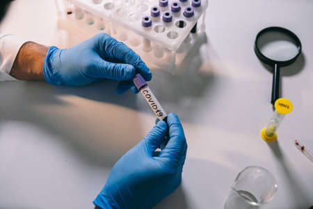Doctor holding test tube with blood for analyzing pandemic. Healthcare medicine concept, virus test.