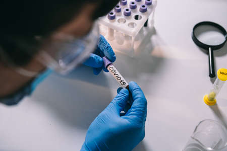 Physician hold laboratory test tube with blood marked and labeled coronavirus COVID-19. 2019-nCoV Coronavirus. Positive blood sample in doctors hand with gloves. Analyzing in reseach laboratory.