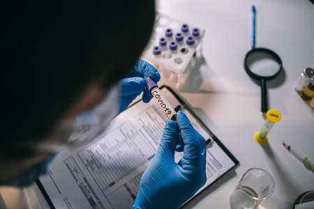 Doctor holding Coronavirus 2019-nCoV blood sample. Concept of vaccination, Covid 19 diagnostic. Diagnosis and laboratory. Scientist with positive coronavirus test. Detection virus infected. Pandemic. Standard-Bild