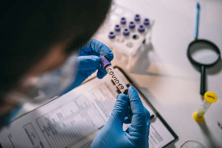 Doctor holding test tube with blood for 2019-nCoV analyzing. Coronavirus disease COVID-19 pandemic. Healthcare medicine concept, virus test. Checking the population for immunity to covid 19.
