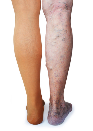 Thrombosis stockings on a leg of old woman isolated on white background. Imagens
