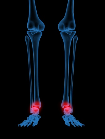 3d X-Ray illustration of Human ankle in red illustration