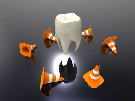 3d illustration of a human teeth with traffic cones on a gray background illustration