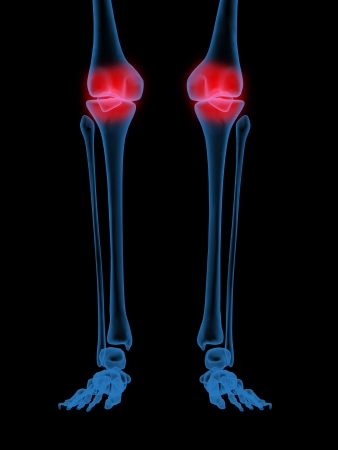 computer tomography: 3d X-Ray illustration of Human knee in red on black background Stock Photo
