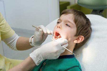 口腔内の検査中に大きく口を開く少年