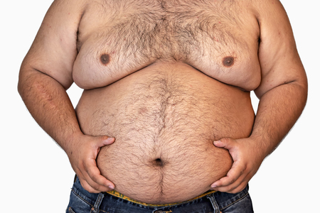 Fat Man Isolated on White Background,Obesity Causes Many Diseases.