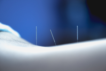 Acupuncture.Alternative medicine. Close-up of back with steel needles during procedure of acupuncture therapy.