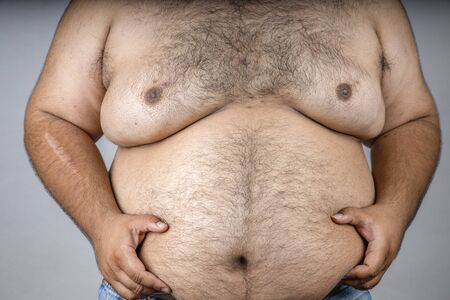 A fat man with a shaggy beard. Obese people. The Dangers of Belly Fat. Fat man with a big belly , Men at risk for diabetes. Obese people with diabetes.