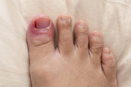 Rotten nails, Close up of rotten toenails. Puffiness,redness. Stock fotó