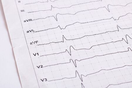 Cardiogram results on white paper, heart health