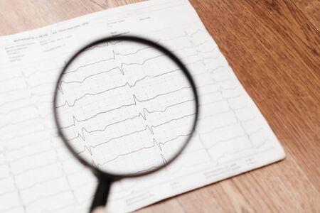 Cardiorgram line and magnifier lens close up